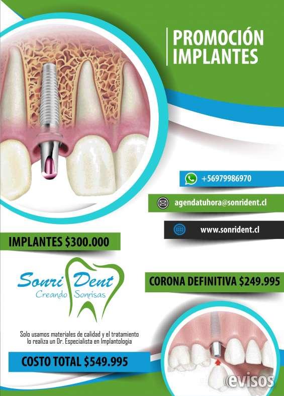 Implantes dentales en clínica dental en la florida hoy