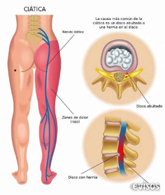 Como curar el dolor ciatico naturalmente?