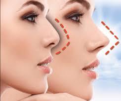 Levanta la nariz, mejora perfil, narices chatas, anchas, tabique desviado
