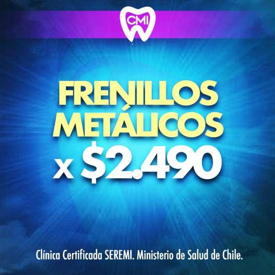Frenillos metálicos gratis. clínica cristiana 12.2019